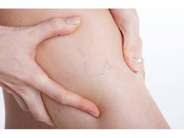как определить варикозное расширение вен на ногах