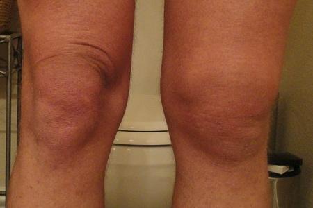 Появилась шишка на кости ниже колена
