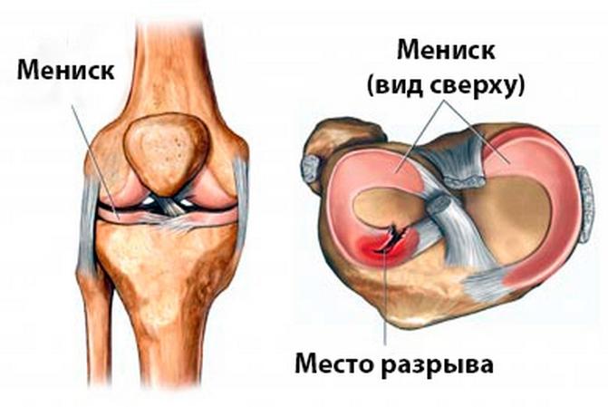 Разрыв заднего рога внутреннего мениска коленного сустава тупая ноющая боль в плечевом суставе