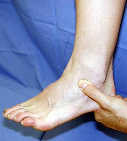 Болят суставы ног: что делать