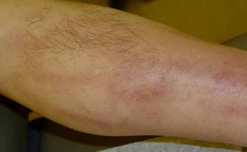 Πόνο στο κάτω μέρος του γόνατος στο μηρό. Από το ισχίο στο γόνατο ... 2a81708b52d