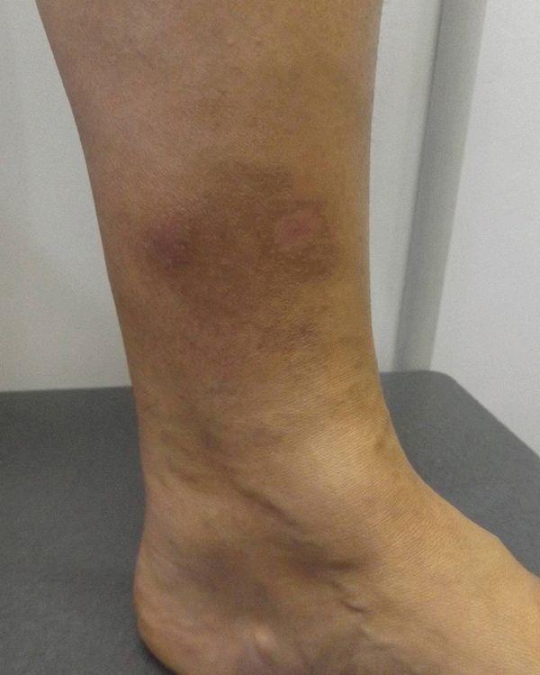 Удаление пигментных пятен на ногах
