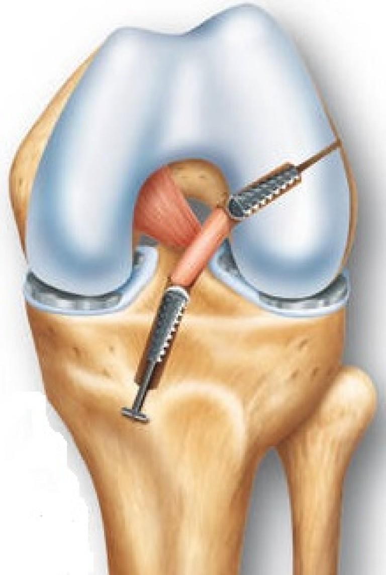 Восстановление связки коленного сустава мутная жидкость в суставе