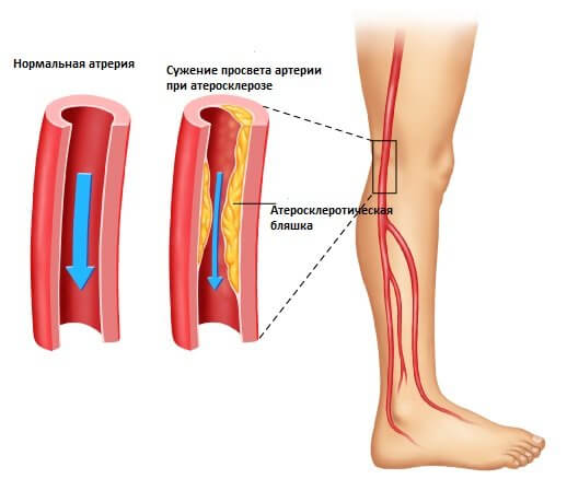 Шишка в коленном суставе сбоку комплекс упражнений при заболевании голеностопного сустава