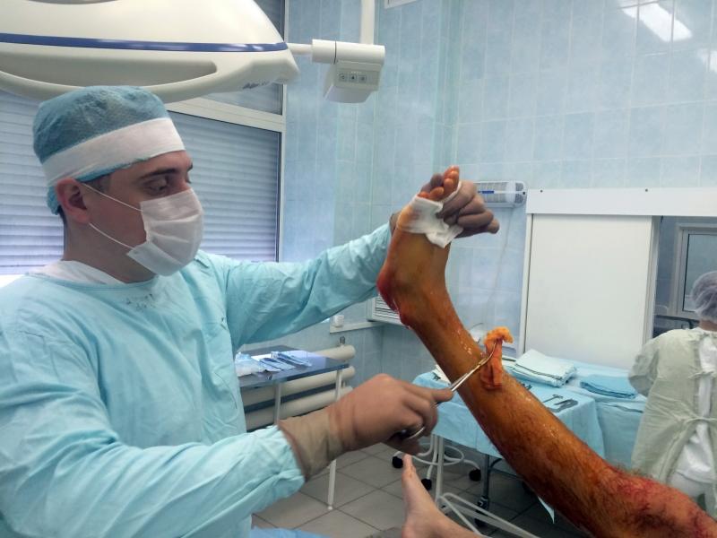 Закрытый перелом наружной лодыжки правой голени со смещением