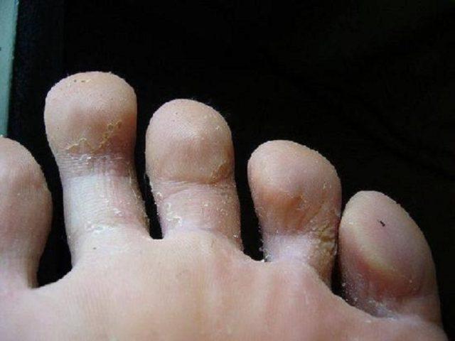 Грибок кандида на ногах