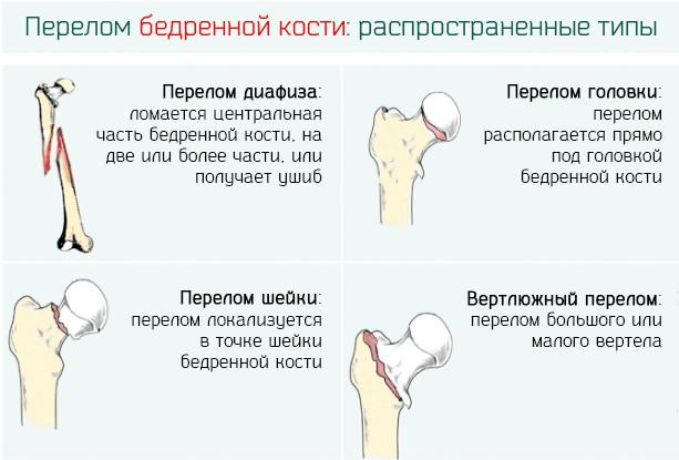 Диагноз внутрисуставной перелом медиального мышелка кости, реабилитация, упражнения, сним польза и вред внутрисуставного геля гиалуром
