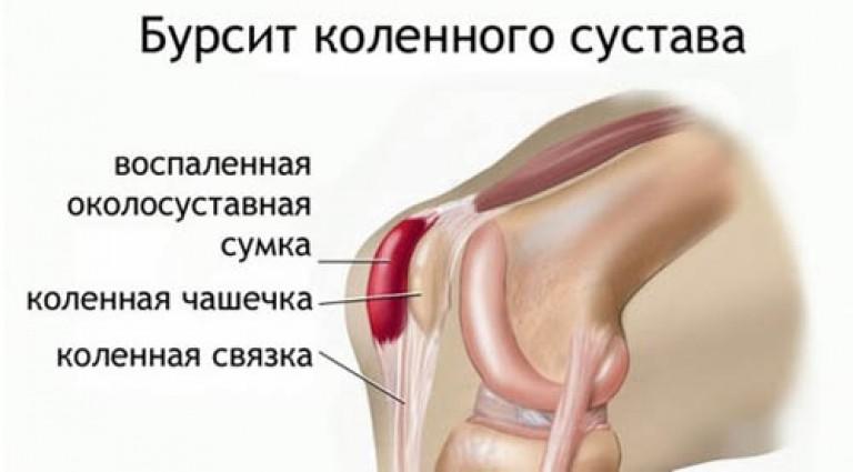 Болит колено при сгибании и разгибании лечение народными средствами история болезни по профессиональным болезням периартроз плечевого сустава