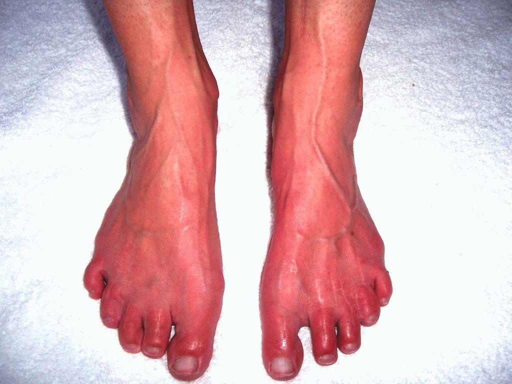 Болит нога между пяткой и носком
