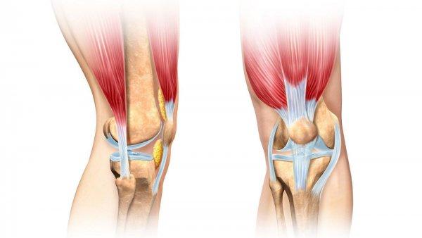 Болят сухожилия под коленом что делать