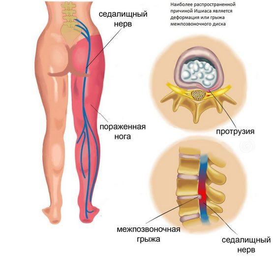 Сустава нельзя заниматься деятельностью время после которой появляются боли колене металло полимерный эндопротез коленного сустава с пполицентрическим шарниром