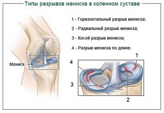 A térde fáj. A fájdalom leggyakoribb okai a térdízületben