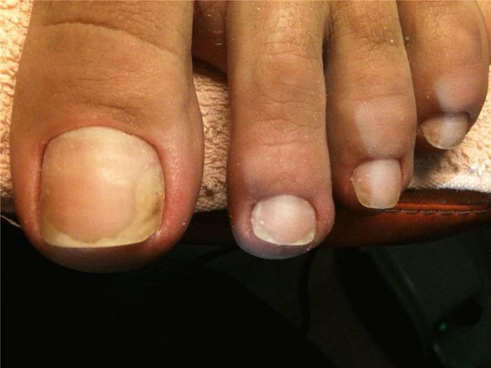 С чего начинается грибок на ногтях фото