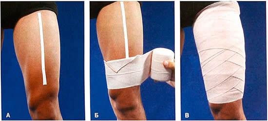 Растяжение мышц и связок бедра симптомы и лечение время восстановления