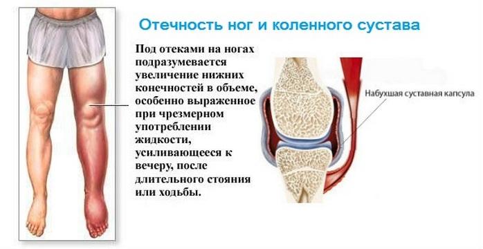 Боль в коленном суставе температура воск растопленный перелом сустав