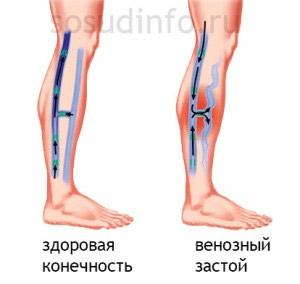 Варикоз жжение в венах. Почему возникает ощущение жжения в венах на ногах