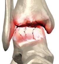 Нет смазки в тазобедренном суставе иглоукалывание при переломе лучезапястного сустава