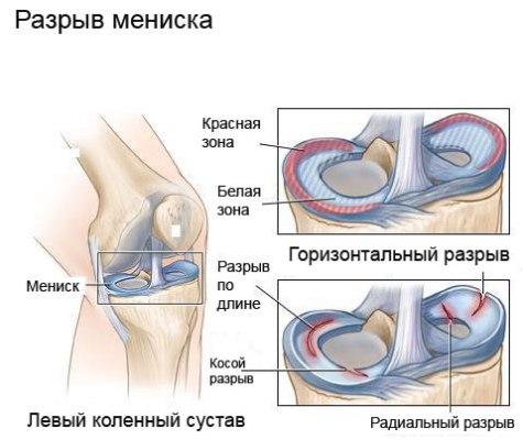 Ejercicios de recuperación después de una lesión en la rodilla ...
