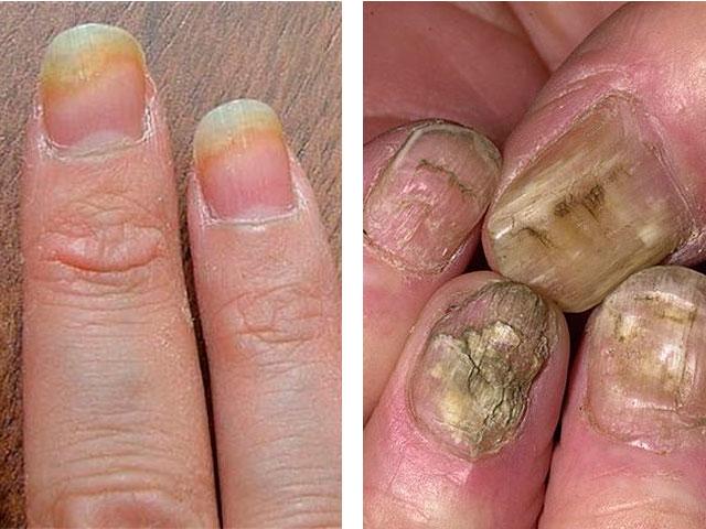 Чем удалить ногти больные грибком
