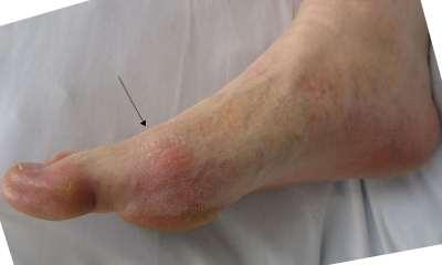 Боль в ноге при ходьбе: диагностика и лечение
