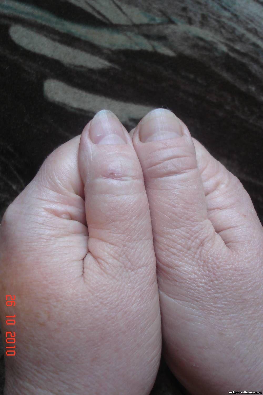 Грибок на кутикуле пальца руки