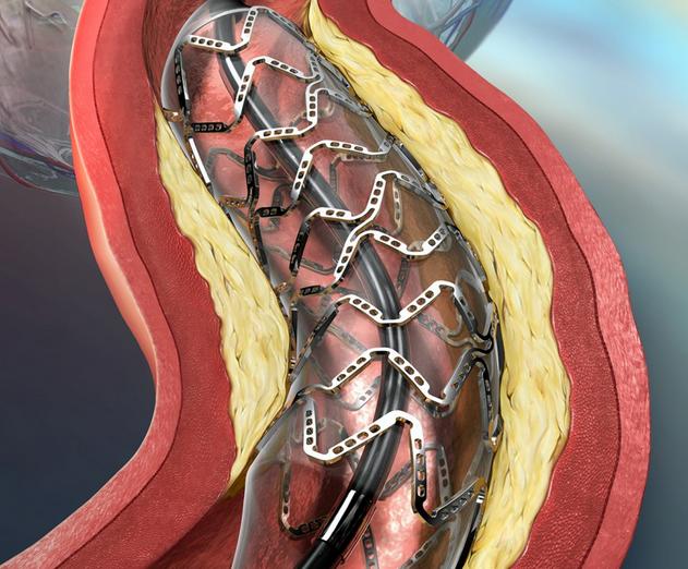 стентирование коронарных артерий и инфаркт