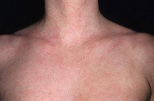 Сыпь на груди что это