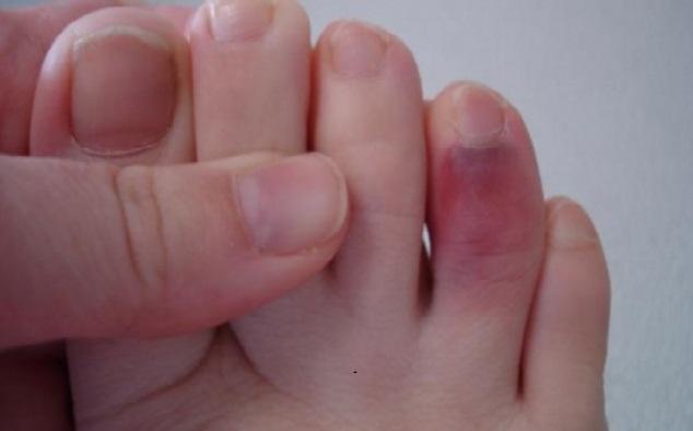 почему долго болит ушибленный палец на ноге