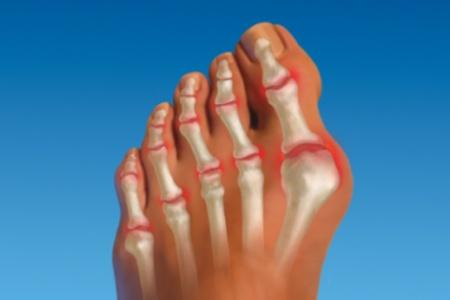 Опух сустав большого пальца ноги как лечить болит локтевой сустав руки