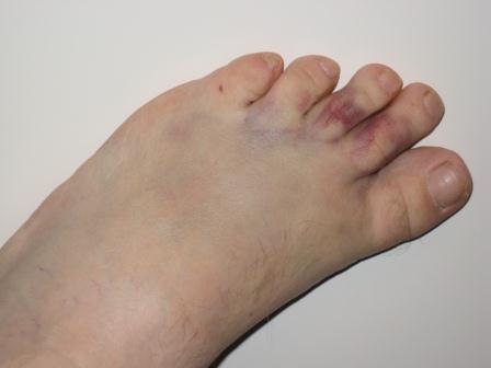 Палец посинел после удара