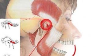 Как лечить челюстной сустав. Особенности заболевания остеоартроз челюстного сустава и его лечение. При центральном соотношении челюстей