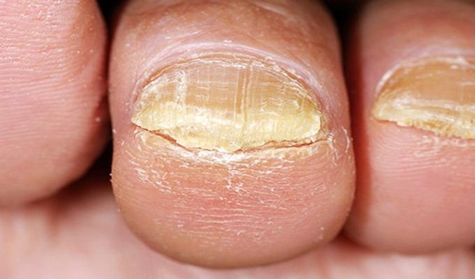 Грибок Ногтей На Ноге Лечение Препараты Недорогие Но Эффективные